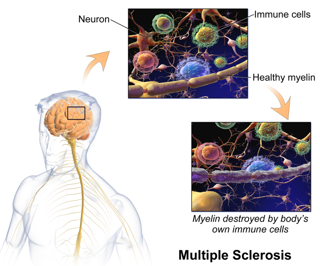 myelin in ms