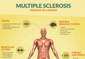 Multiple Sclerosis portrait of a patient