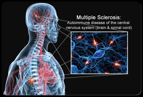 Multiple sclerosis skeleton